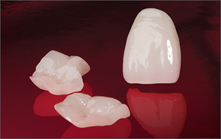 Ceramic and porcelain crowns in Tijuana.