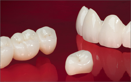Zirconia Crowns and bridges in Tijuana